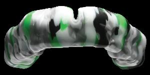 Custom Marble Mouthguard